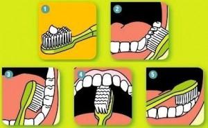 Kaip_valyti_dantukus